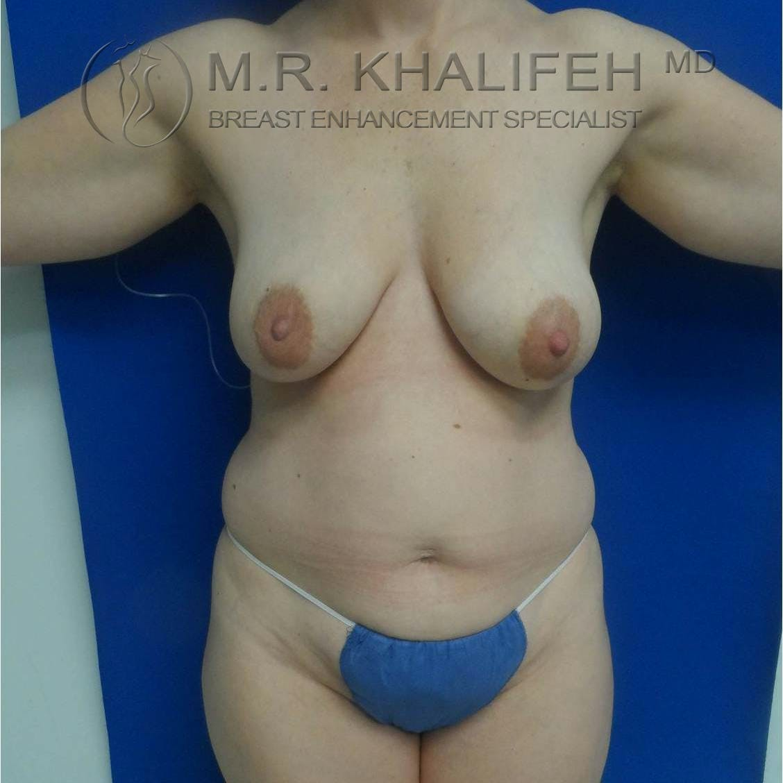Breast Lift Gallery - Patient 3762042 - Image 7