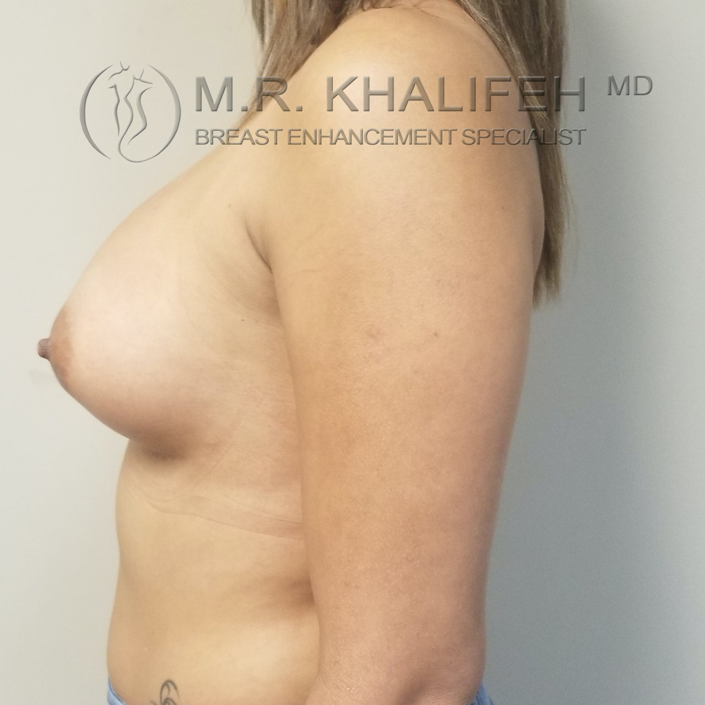 Breast Augmentation Gallery - Patient 3762044 - Image 10