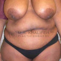 Tummy Tuck Gallery - Patient 3762050 - Image 1
