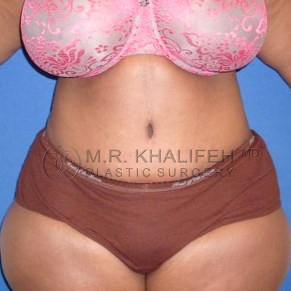 Tummy Tuck Gallery - Patient 3762050 - Image 2