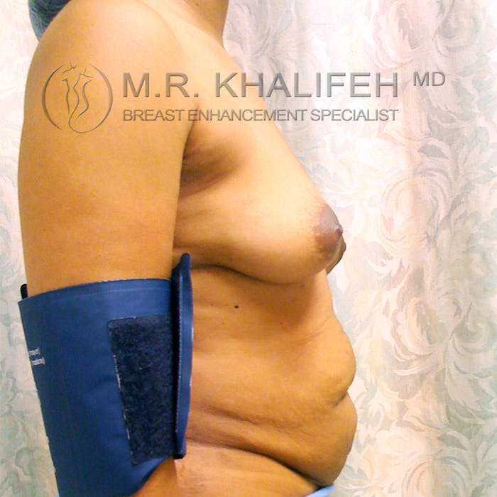 Breast Augmentation Gallery - Patient 3762049 - Image 3