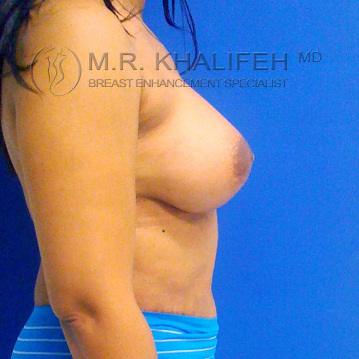 Breast Augmentation Gallery - Patient 3762049 - Image 4