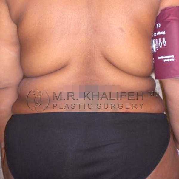 Tummy Tuck Gallery - Patient 3762050 - Image 7