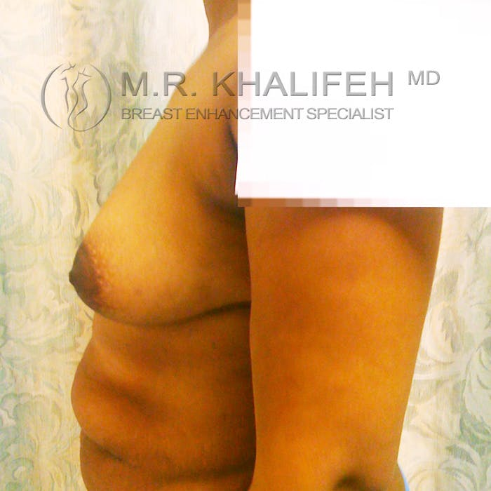 Breast Augmentation Gallery - Patient 3762049 - Image 5