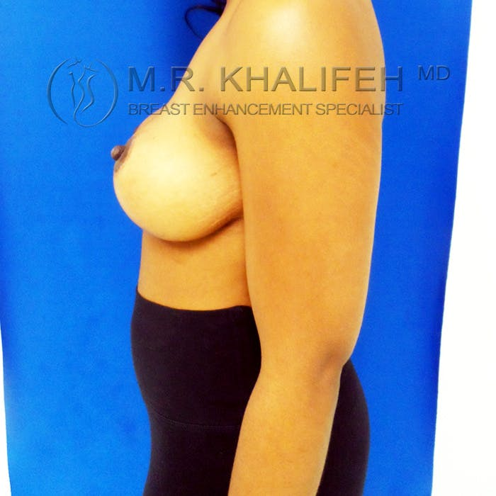 Breast Lift Gallery - Patient 3762048 - Image 6