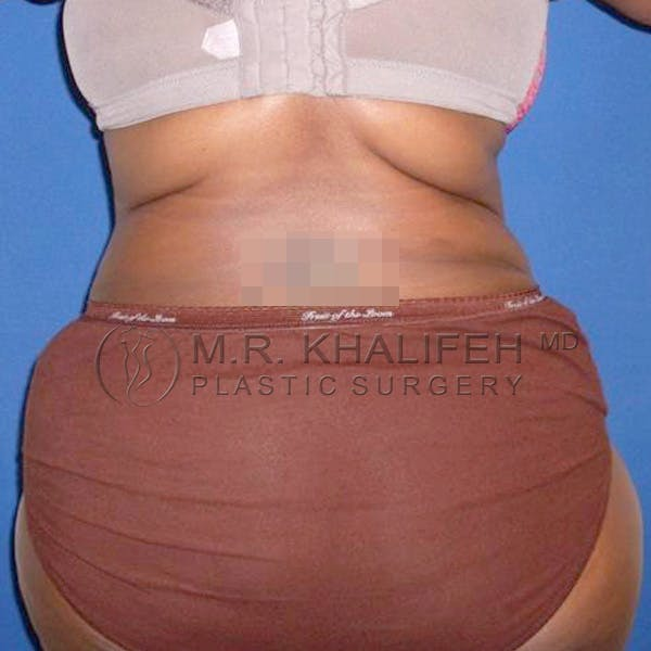 Tummy Tuck Gallery - Patient 3762050 - Image 8