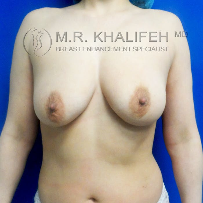 Breast Lift Gallery - Patient 3762053 - Image 1