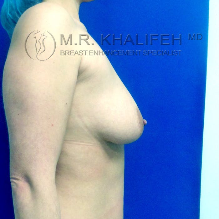 Breast Lift Gallery - Patient 3762053 - Image 5