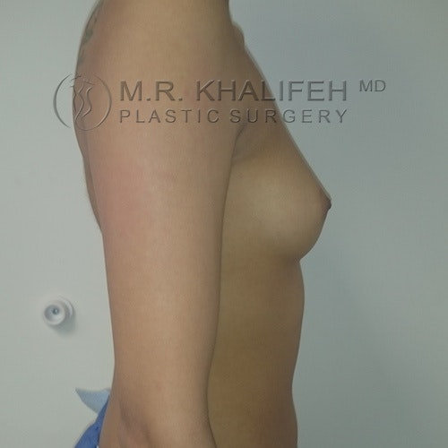 Breast Augmentation Gallery - Patient 3762052 - Image 5