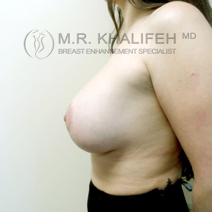 Breast Lift Gallery - Patient 3762053 - Image 8