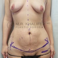 Breast Augmentation Gallery - Patient 3762056 - Image 1