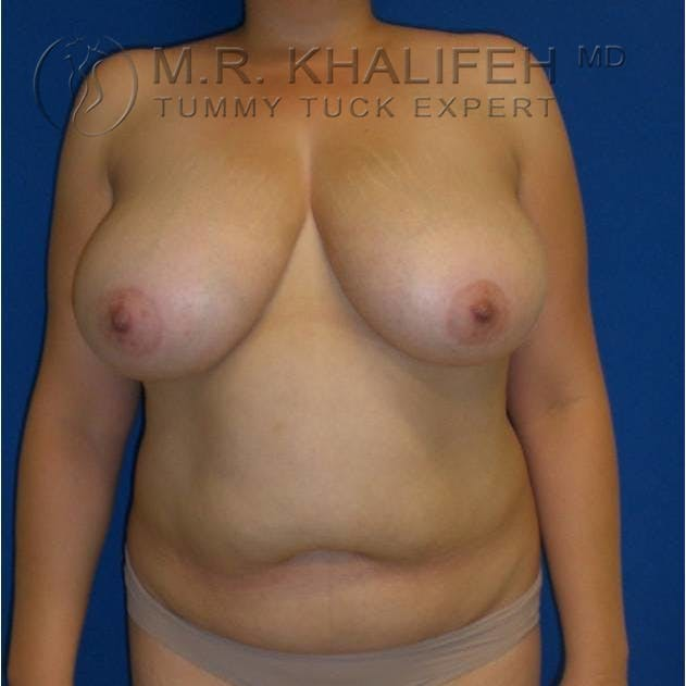 Tummy Tuck Gallery - Patient 3762054 - Image 3