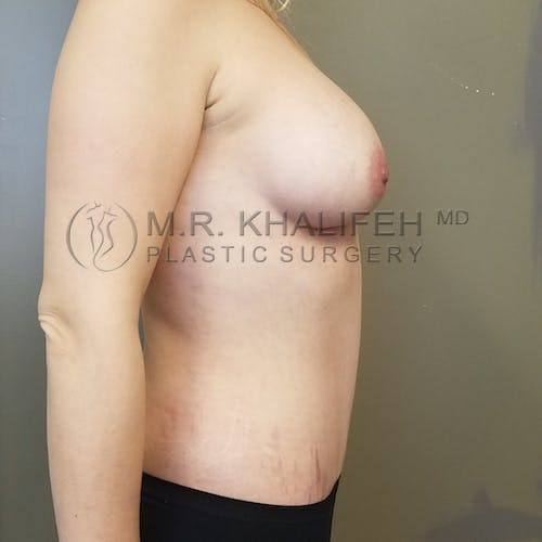 Breast Augmentation Gallery - Patient 3762056 - Image 4