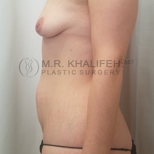 Breast Augmentation Gallery - Patient 3762056 - Image 7
