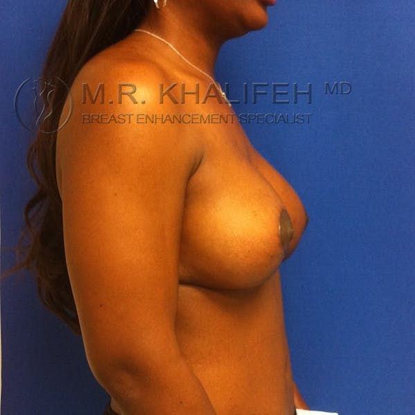 Breast Lift Gallery - Patient 3762065 - Image 4