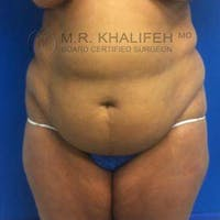 Tummy Tuck Gallery - Patient 3762067 - Image 1