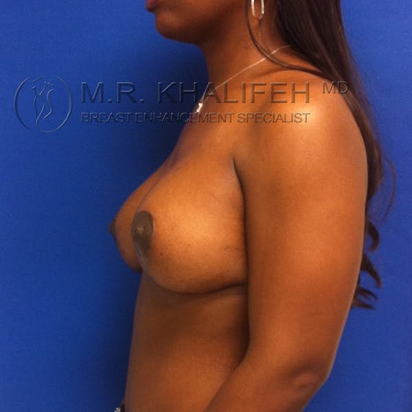 Breast Lift Gallery - Patient 3762065 - Image 6