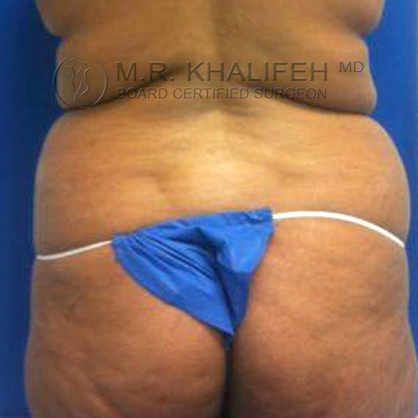 Tummy Tuck Gallery - Patient 3762067 - Image 3