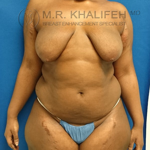 Breast Lift Gallery - Patient 3762070 - Image 1