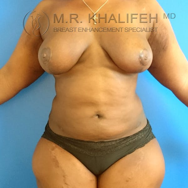 Breast Lift Gallery - Patient 3762070 - Image 2