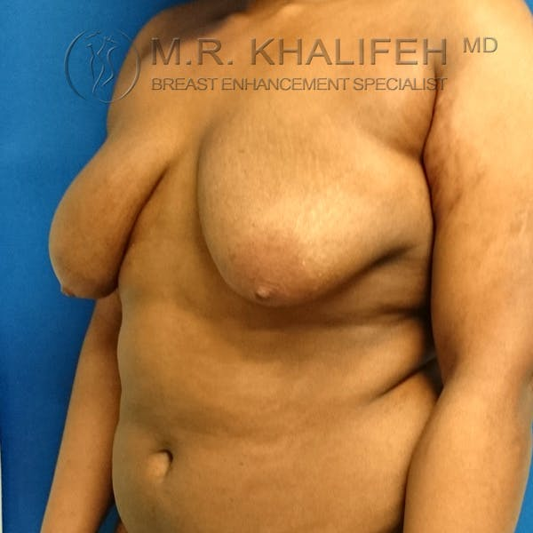 Breast Lift Gallery - Patient 3762070 - Image 3