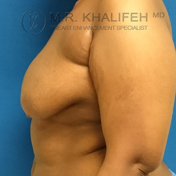 Breast Lift Gallery - Patient 3762070 - Image 5