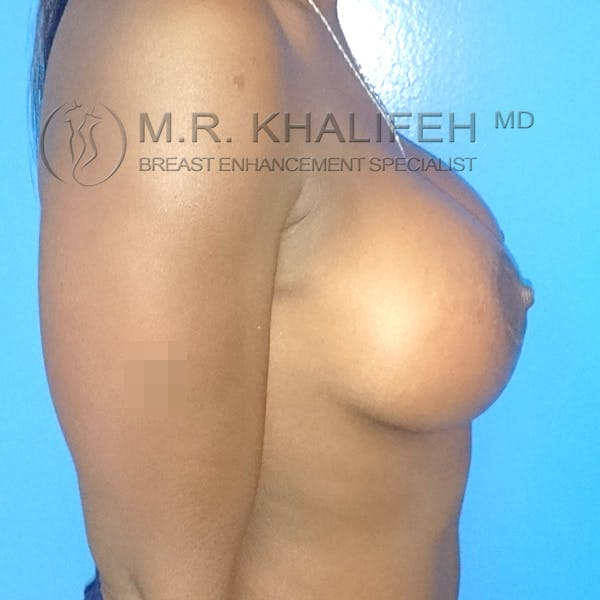 Breast Augmentation Gallery - Patient 3762069 - Image 6