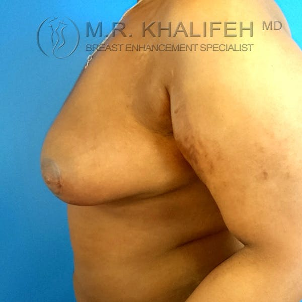 Breast Lift Gallery - Patient 3762070 - Image 6