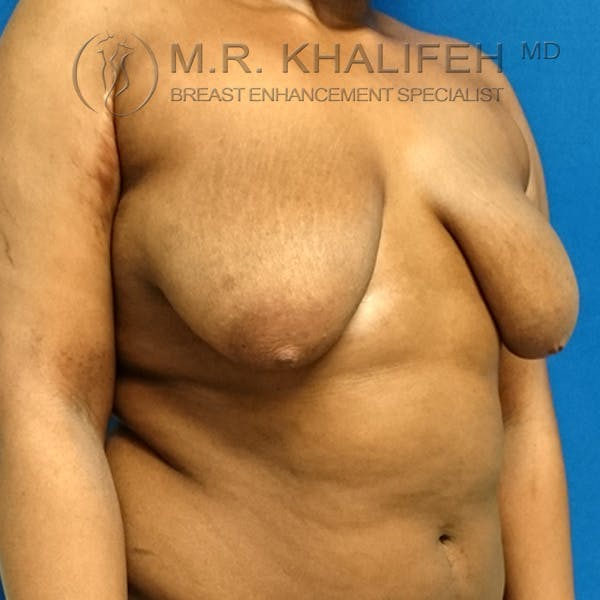 Breast Lift Gallery - Patient 3762070 - Image 7