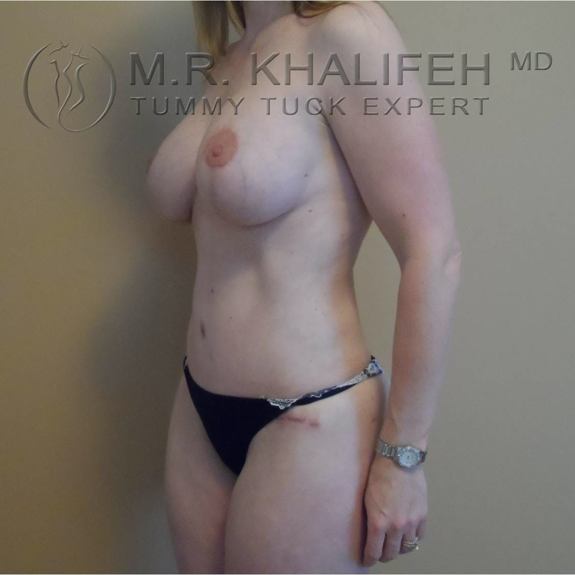 Tummy Tuck Gallery - Patient 3762071 - Image 2