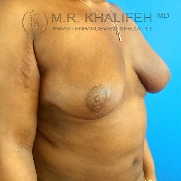 Breast Lift Gallery - Patient 3762070 - Image 8