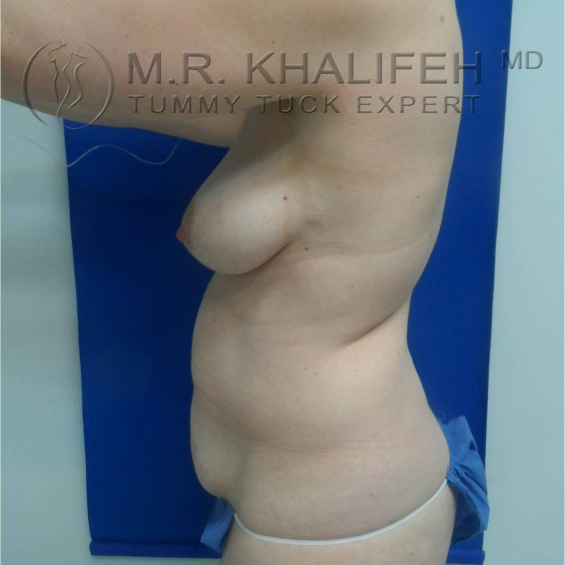 Tummy Tuck Gallery - Patient 3762071 - Image 3
