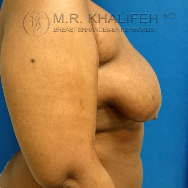 Breast Lift Gallery - Patient 3762070 - Image 9