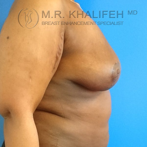 Breast Lift Gallery - Patient 3762070 - Image 10