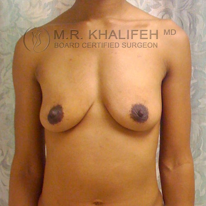 Breast Augmentation Gallery - Patient 3762072 - Image 1