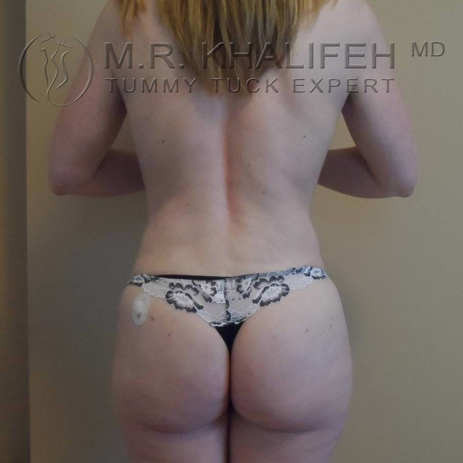 Tummy Tuck Gallery - Patient 3762071 - Image 6