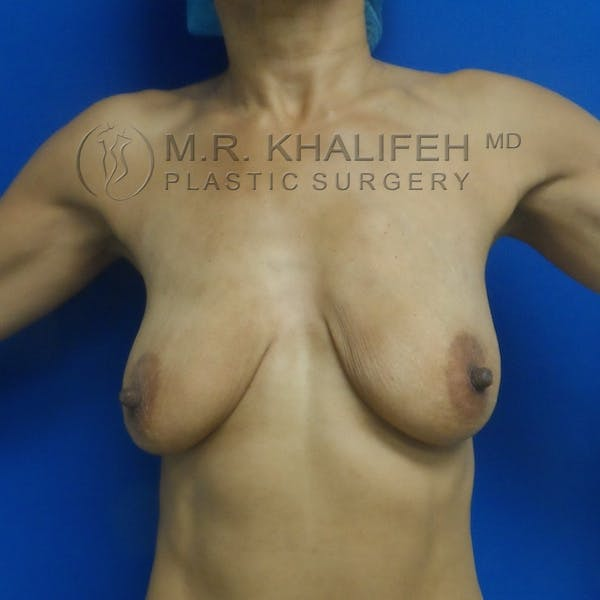 Breast Lift Gallery - Patient 3762073 - Image 1