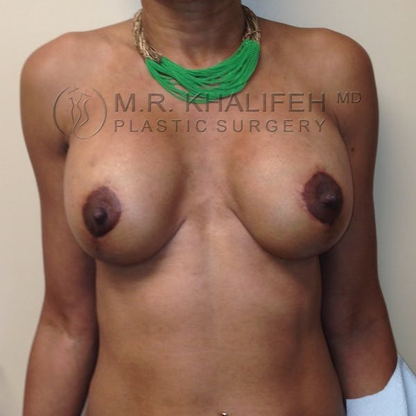 Breast Lift Gallery - Patient 3762073 - Image 2