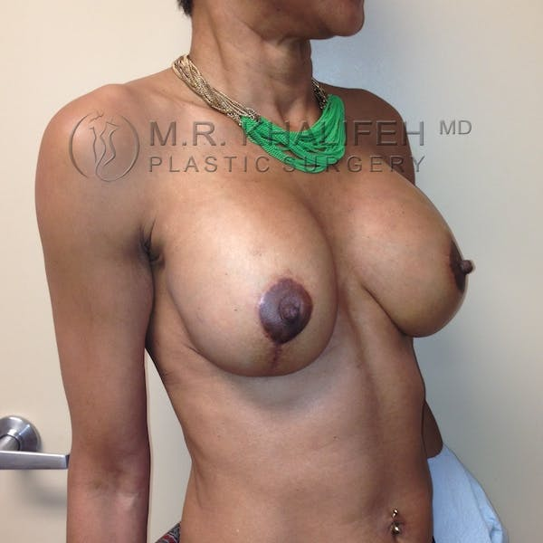 Breast Lift Gallery - Patient 3762073 - Image 4