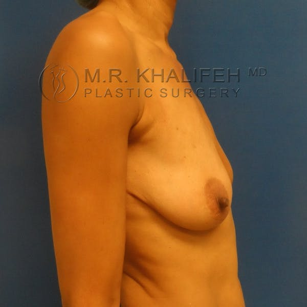 Breast Lift Gallery - Patient 3762073 - Image 5