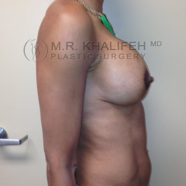 Breast Lift Gallery - Patient 3762073 - Image 6