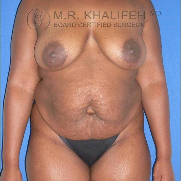 Tummy Tuck Gallery - Patient 3762078 - Image 1