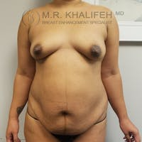 Breast Augmentation Gallery - Patient 3762075 - Image 1