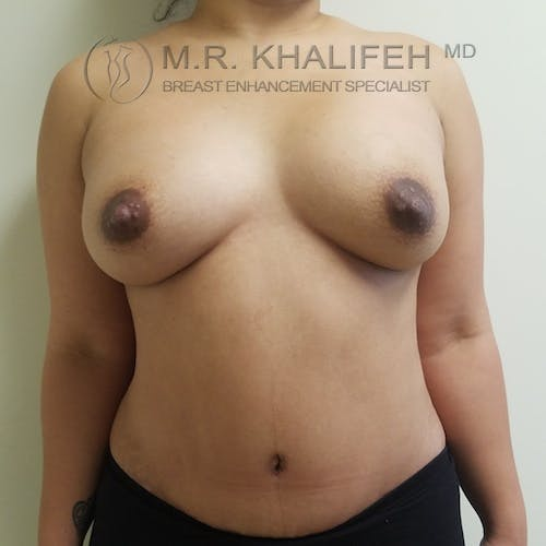 Breast Augmentation Gallery - Patient 3762075 - Image 2