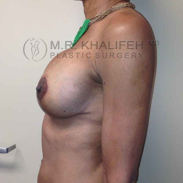 Breast Lift Gallery - Patient 3762073 - Image 10