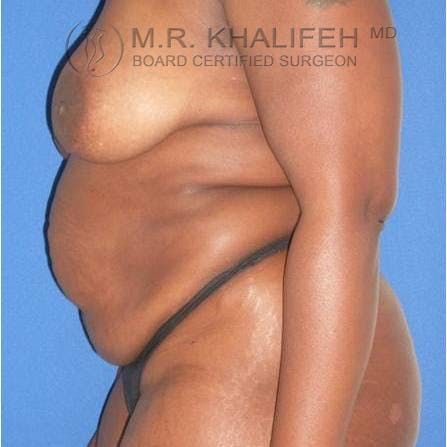 Tummy Tuck Gallery - Patient 3762078 - Image 3