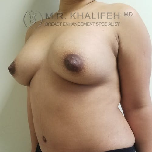 Breast Augmentation Gallery - Patient 3762075 - Image 4