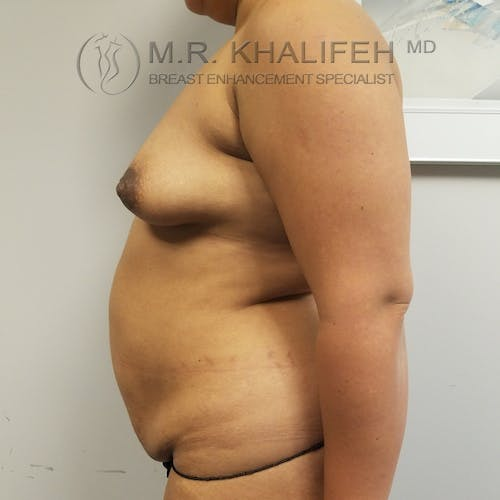 Breast Augmentation Gallery - Patient 3762075 - Image 5