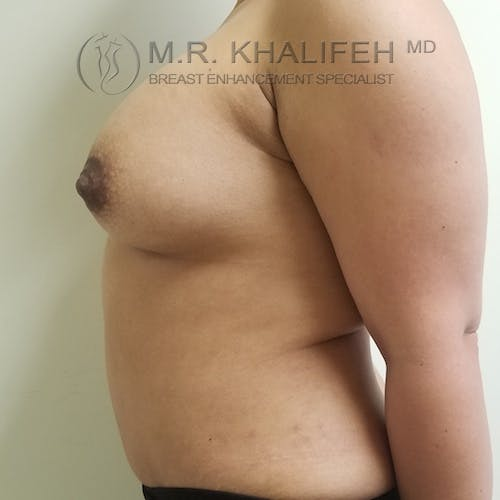 Breast Augmentation Gallery - Patient 3762075 - Image 6