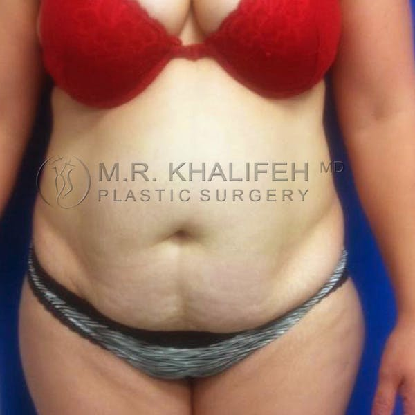 Tummy Tuck Gallery - Patient 3762080 - Image 1